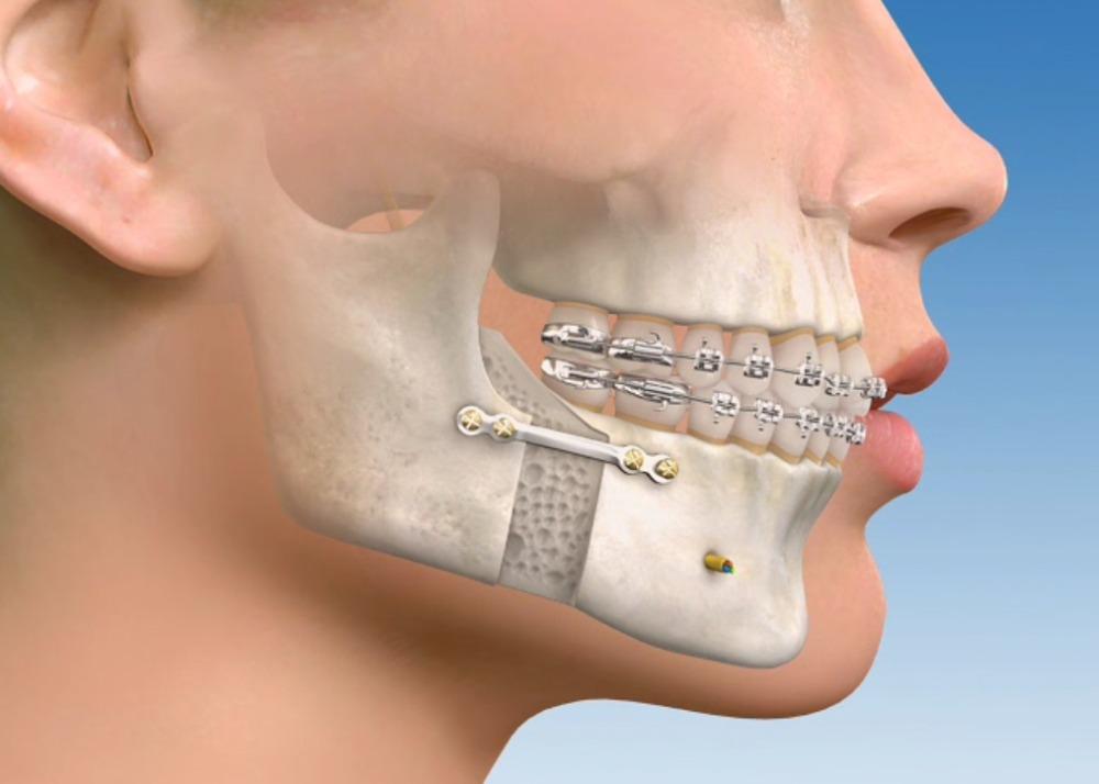 advanced oral surgery